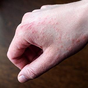 Eczema On Hands - Eczema Home Remedy